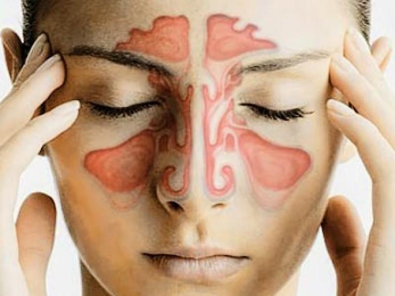 Cirugía Endoscópica de Cavidades Perinasales